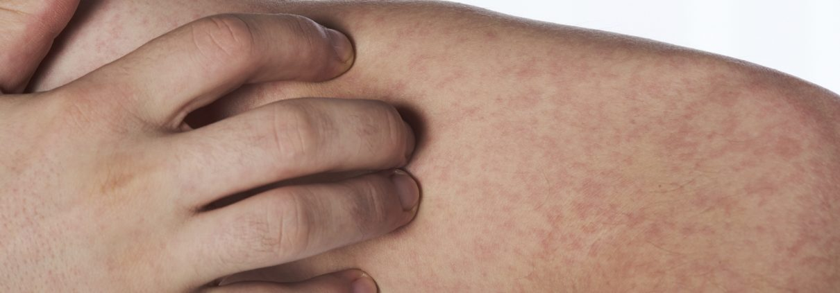 Scratching hand with allergy rash